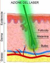 Trattamento di sintomi di ernie di spina dorsale